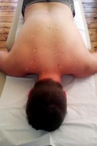 Acupuncture at Arcadia